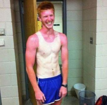 Lächerlicher Sonnenbrand
