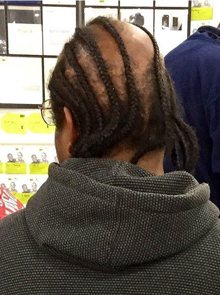 lustige Frisuren Braids auf Glatze?